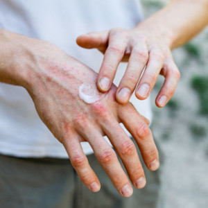 natural antifungal cream applied to a hand